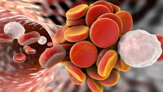 הסיכון לפקקת ורידים תסחיפית בקרב מטופלי דלקת מפרקים שגרונית והקשר למידת פעילות המחלה