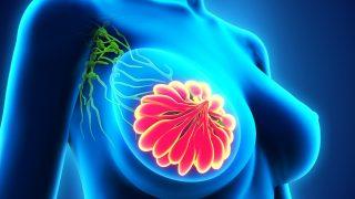 תתי-סוגים נוספים של סרטן שד חיוביים לקולטנים מסוג HER thumbnail